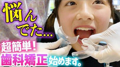 【歯科矯正】実はずっと悩んでた…前歯2本マウスピース矯正始めました。【インビザライン】